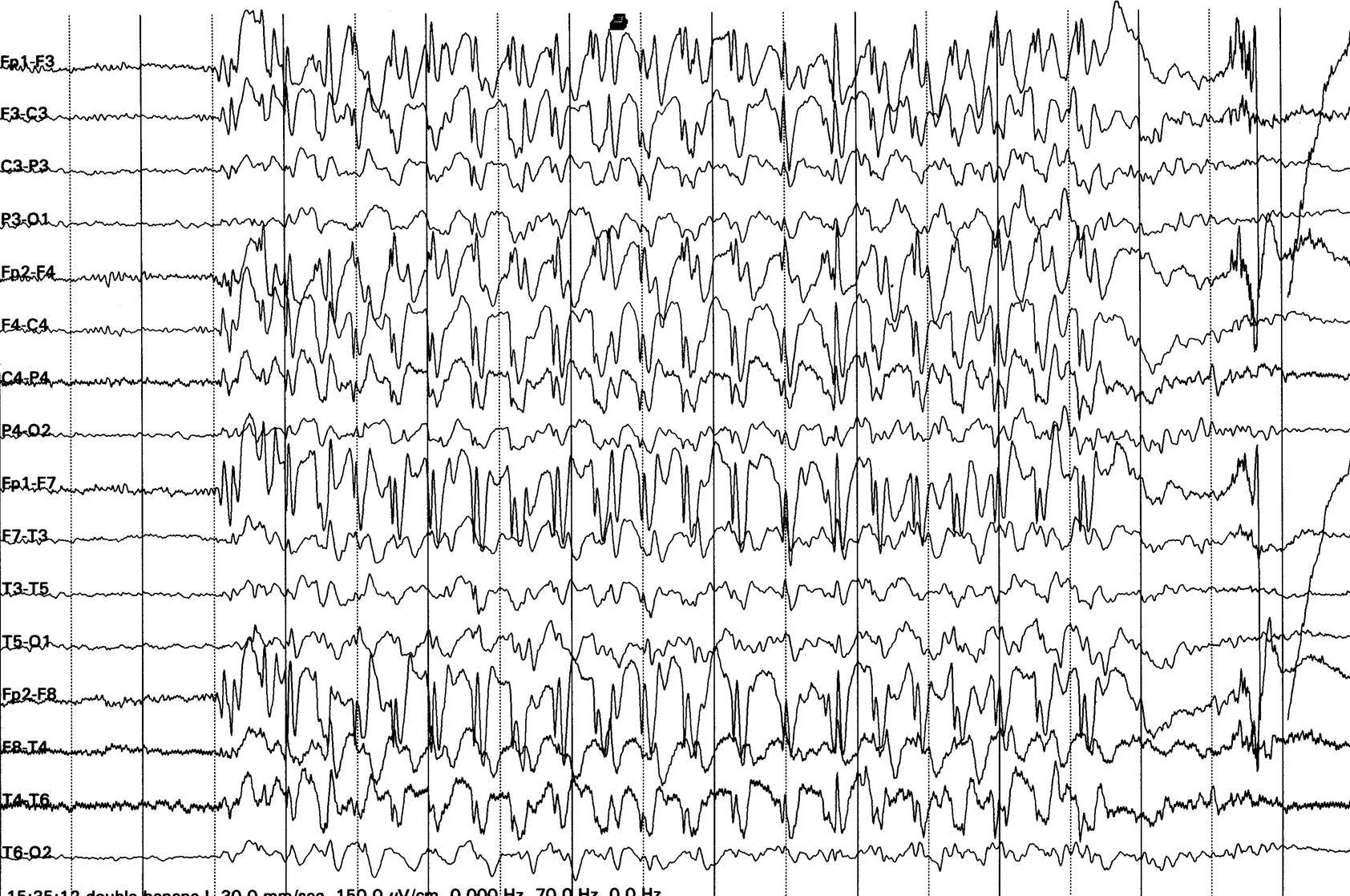 how to read eeg pdf