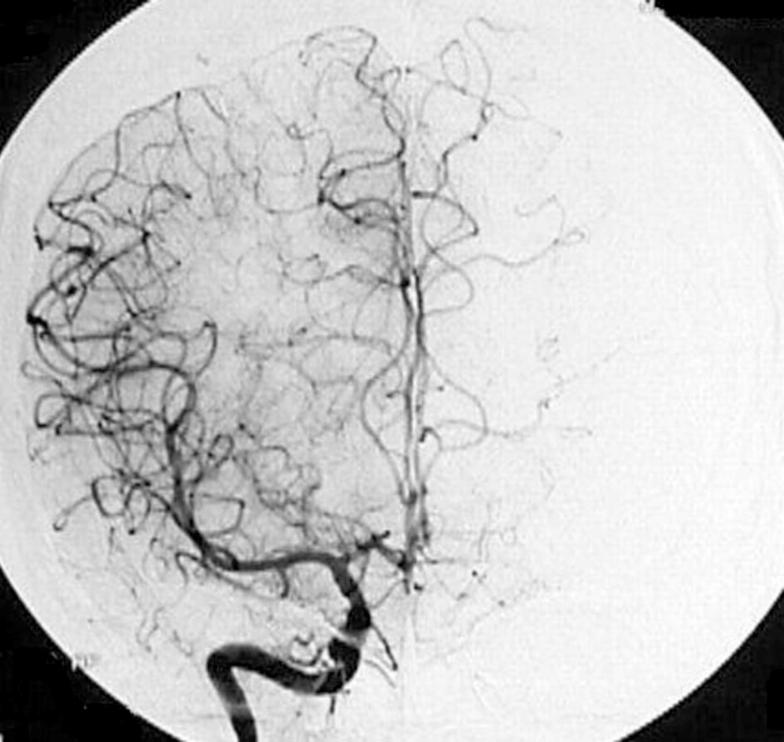 Serebral damarların konstriksiyonu 65