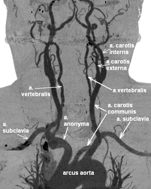arteria anonyma